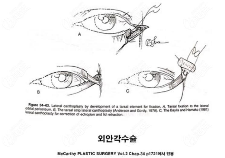 韩国来丽laree整形医院外眼角固定术方法介绍