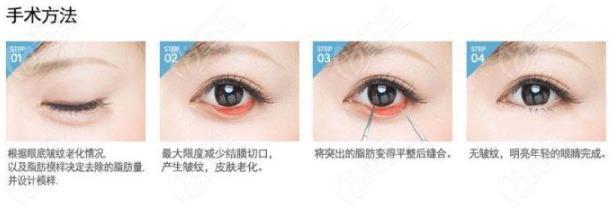 韩国来丽眼底脂肪重置术手术方法介绍