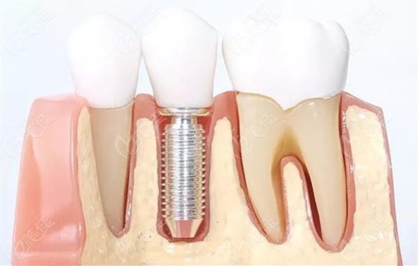 口腔骨移植多用于增加种植体周围骨量
