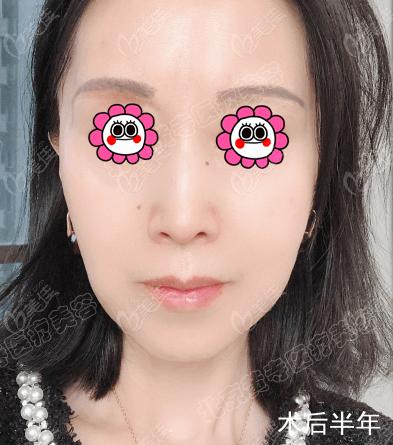 北京杜太超的小切口面部拉皮技术不错,因我对提升除皱效果挺满意的