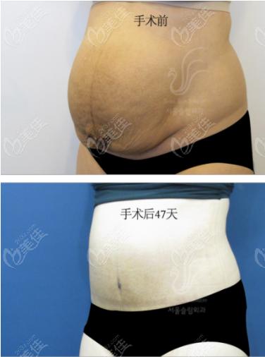 首尔slim腰腹吸脂前后对比效果图1