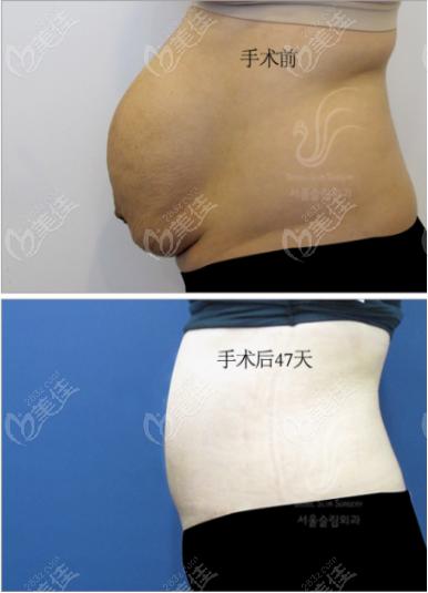 首尔slim腰腹吸脂前后对比效果图2