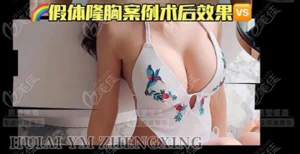 贵阳惠爱医疗美容门诊部陈阳旺术后照片1