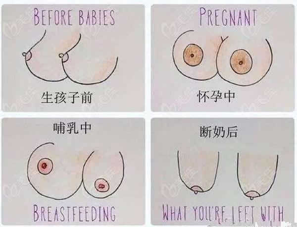 女性哺乳前后胸型变化图