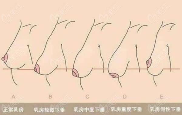 胸下垂程度表现