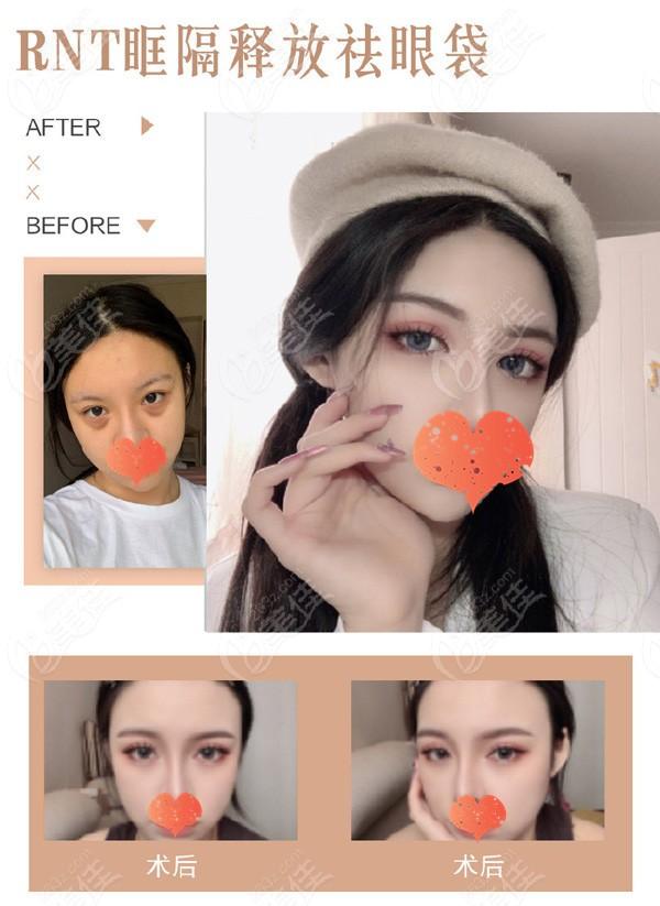 徐州医科汇美美容医院李均友术后照片1