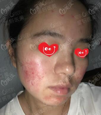 大连星妍医疗美容诊所沈文强术前照片1