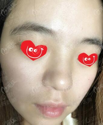 大连星妍医疗美容诊所沈文强术后照片1