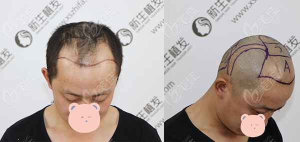 惠州新生植发术前照片1