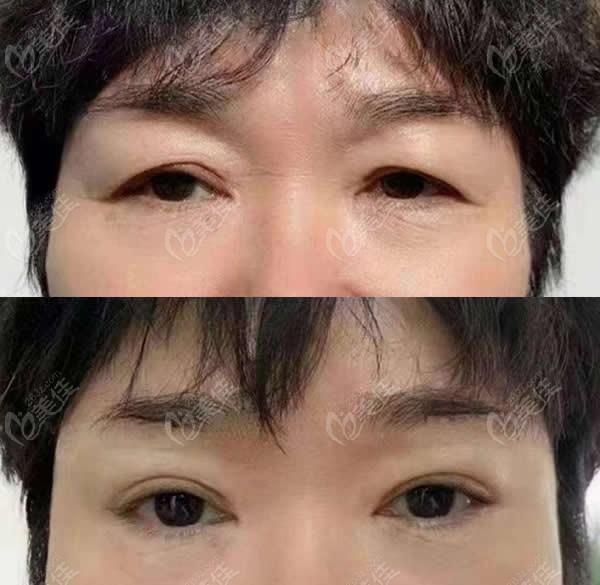 昆明艺星医疗美容医院金辉术前照片1