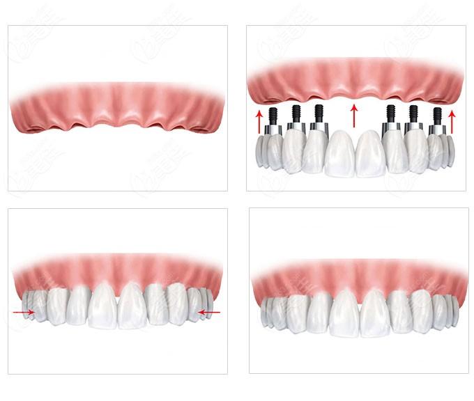 美呀植牙全口固定种植牙价位是多少钱