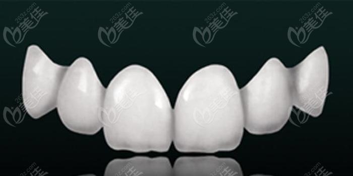 上海美呀种牙全瓷牙冠的收费标准