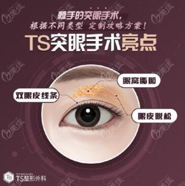 韩国TS医院突眼矫正手术技术优势
