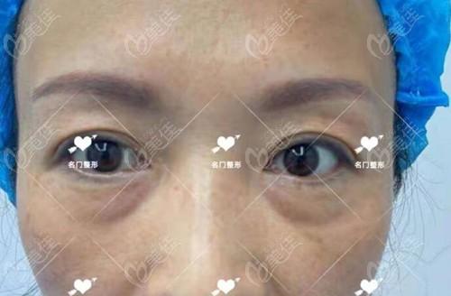 新乡名门医疗美容诊所井素芳术前照片1