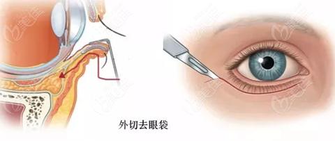 外切去眼袋手术过程