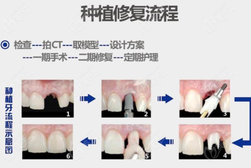 前牙种植的流程图
