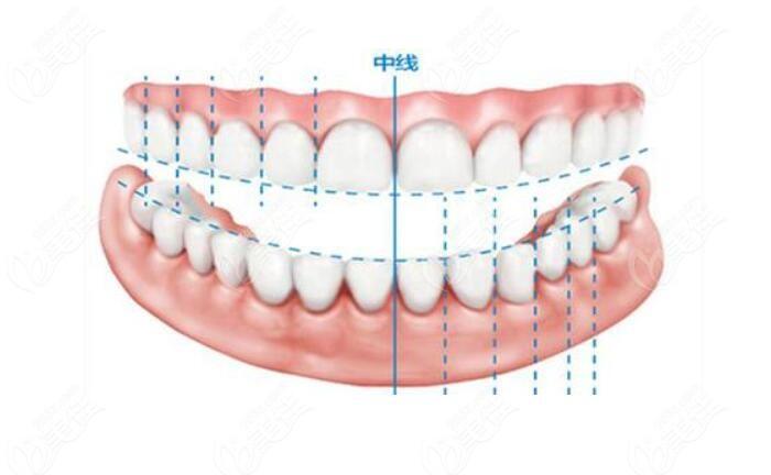 种植前牙时候的微笑线