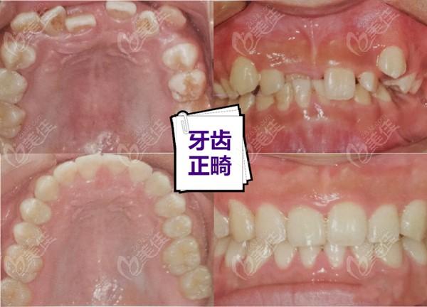 金华婺城口腔医院周亚军术前照片1