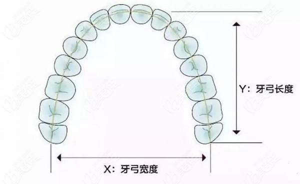 标准的牙弓形态图