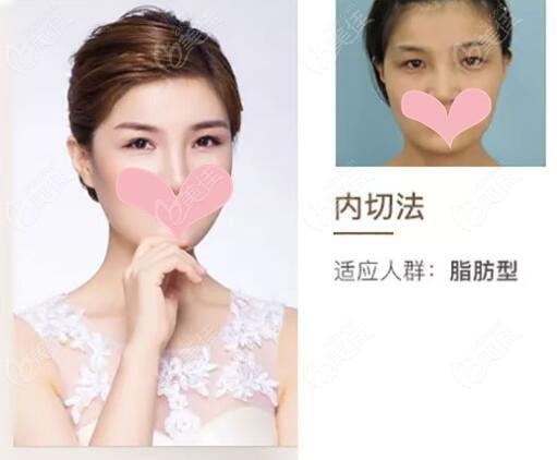 南京康美整形美容医院马秀云术后照片1