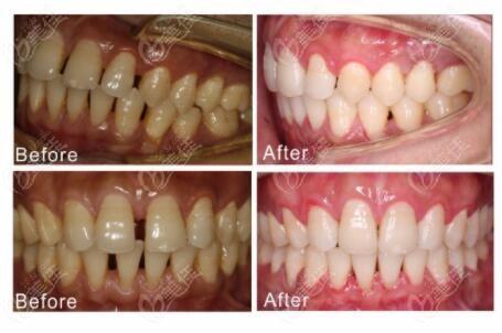 牙齿稀疏慕名来到深圳维港口腔做矫正,自锁陶瓷牙套历时1年半效果很棒