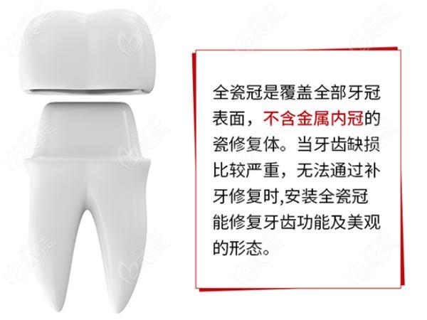 德韩口腔全瓷牙的形态