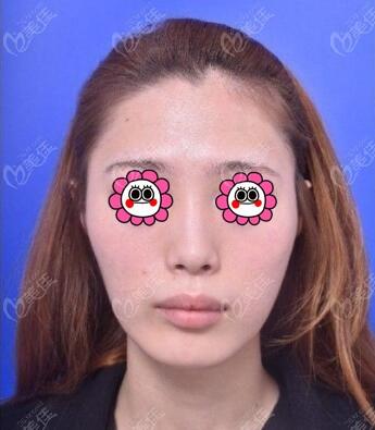 韩国VG百利酷整形外科医院任荣旻术前照片1