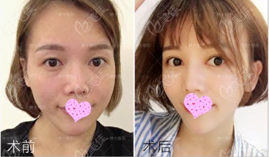 青岛玻尿酸填充全脸的效果图