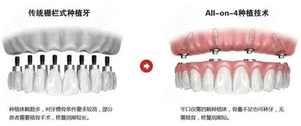 传统种植牙与all- on-4种植牙区别
