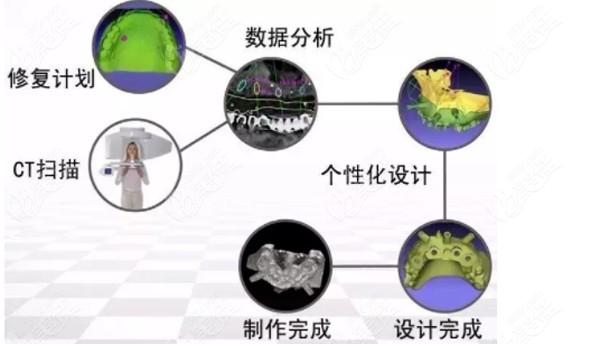 什么是3D数字化导板种植术