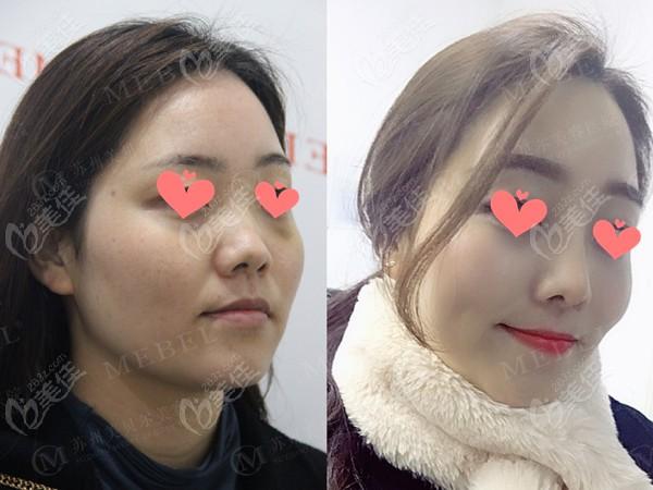 韩士生科+耳软骨鼻尖成型对比照