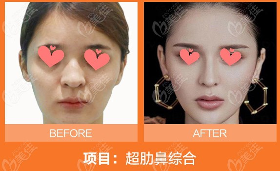 超肋+膨体鼻综合术前和术后对比
