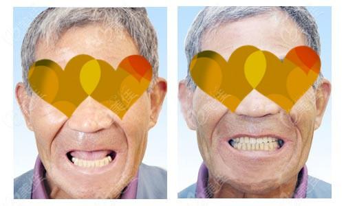 78岁的爷爷在银川和仁堂口腔做了全口种植牙后,说自己年轻了十几岁