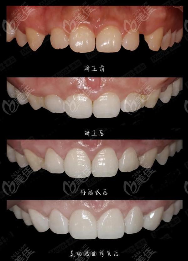 分享正畸+美加瓷贴面联合矫治深覆合、牙体短小、牙缝大的效果,整牙必看哦!