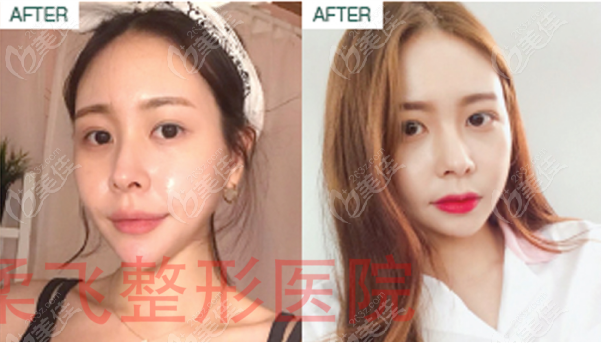 韩国歌柔飞做面部埋线提升效果维持还挺久的,算比较厉害的医院哦
