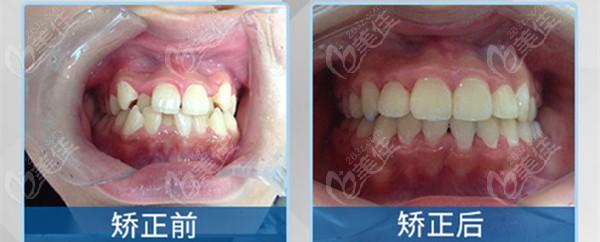 牙齿是安氏三类错颌畸形,选自锁托槽矫正的效果很赞哦!