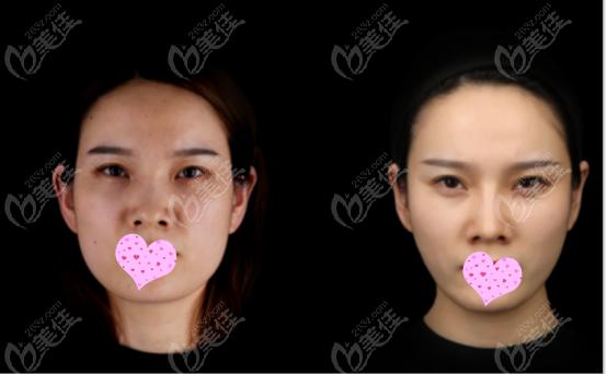 西安高一生鼻综合手术真人效果图