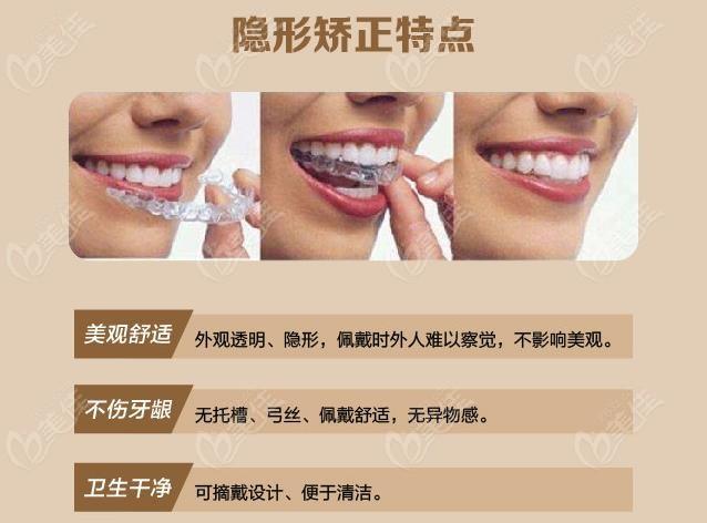 雅士洁隐形牙齿矫正的优点