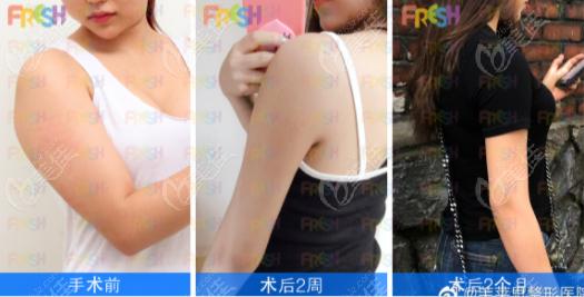 韩国芙莱思威塑吸脂瘦手臂效果图