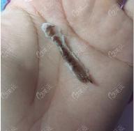 疤痕结痂掉落了