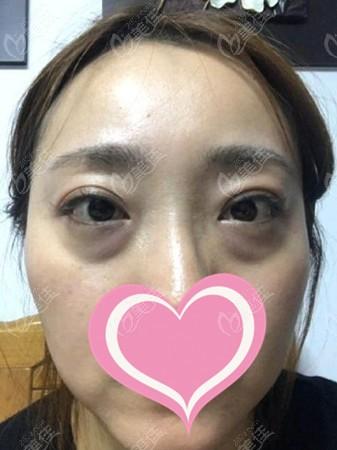 鸡西御美楼医疗美容门诊部刘有恒术前照片1