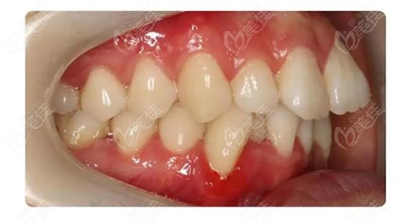 牙齿矫正前图片