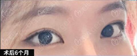 韩国做双眼皮术后半年恢复照