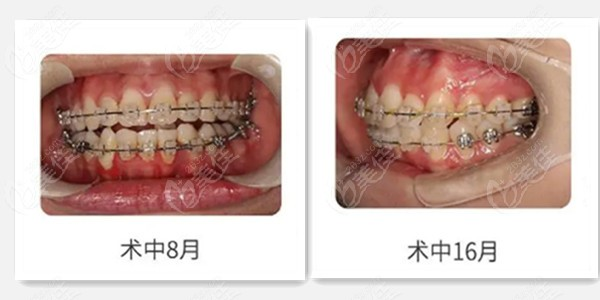 牙齿矫正的过程