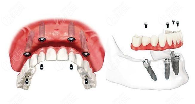ALL-ON-4半口种植牙