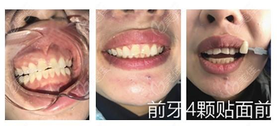 哈尔滨美中口腔门诊部程广术前照片1