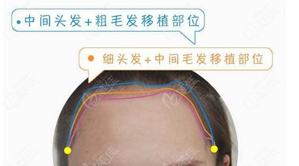 绒毛发际线种植术中设计图