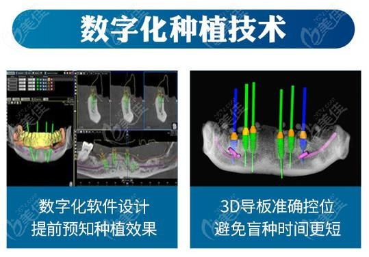 艾齿牙科的数字化种植技术
