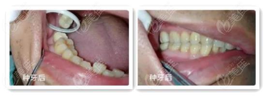 老爸在银川艾齿口腔做了三颗韩国奥齿泰种植牙,看了术后效果太后悔没早点去种牙