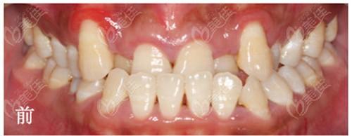西安诺贝尔口腔门诊部术前照片1